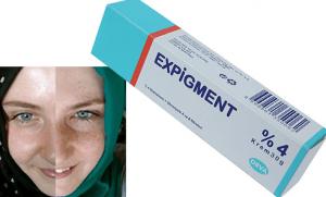 Expigment krem faydaları ve fiyati